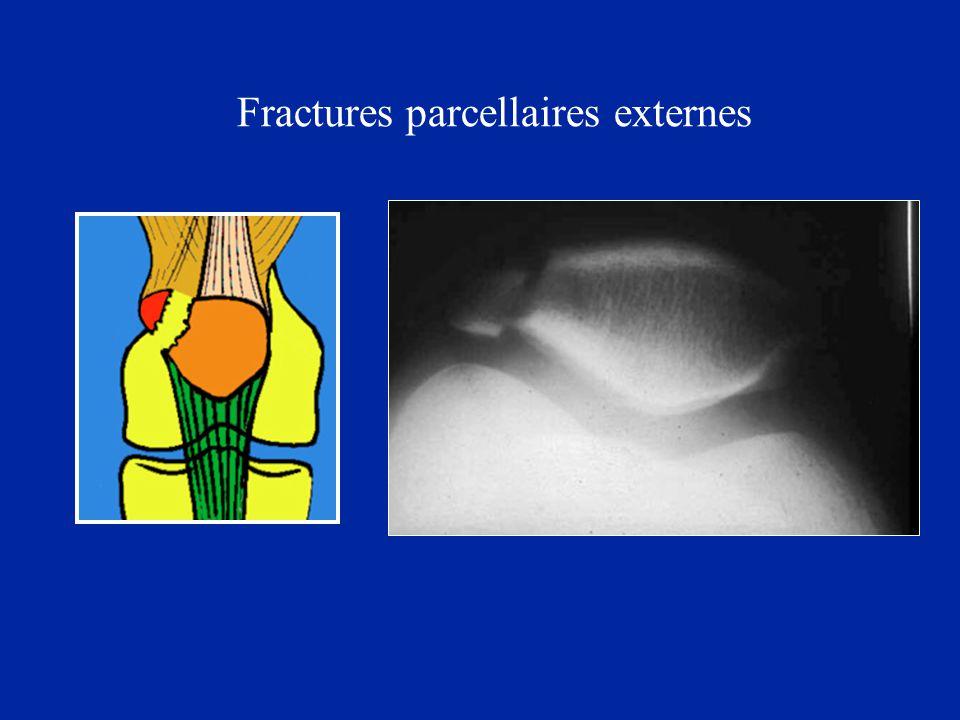 Fractures parcellaires externes