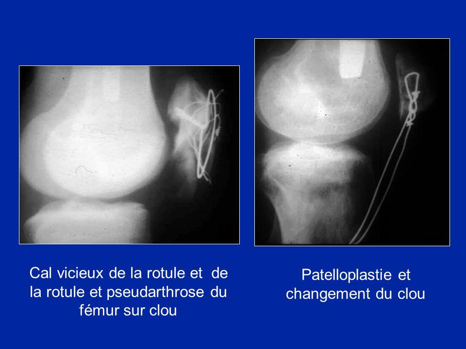 Patelloplastie et changement du clou