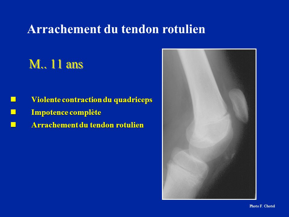 Arrachement du tendon rotulien