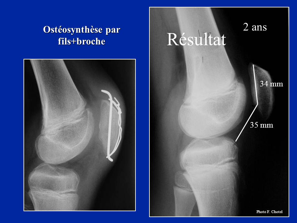 Ostéosynthèse par fils+broche