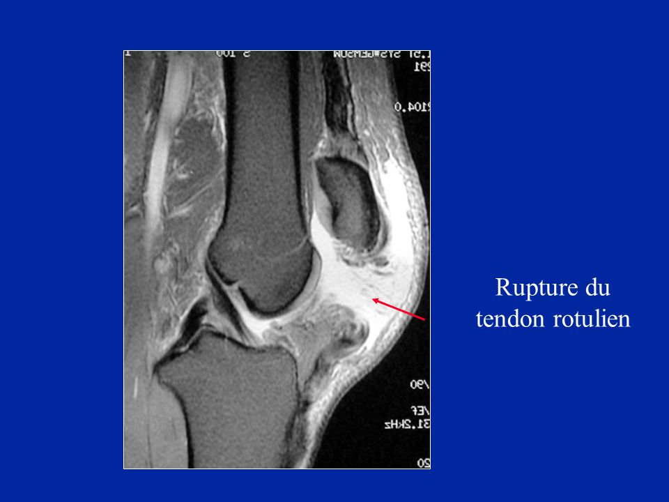 Rupture du tendon rotulien