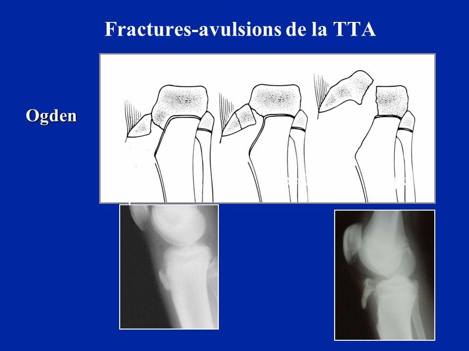 Fractures-avulsions de la TTA