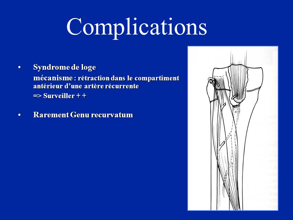 Complications Syndrome de loge Rarement Genu recurvatum