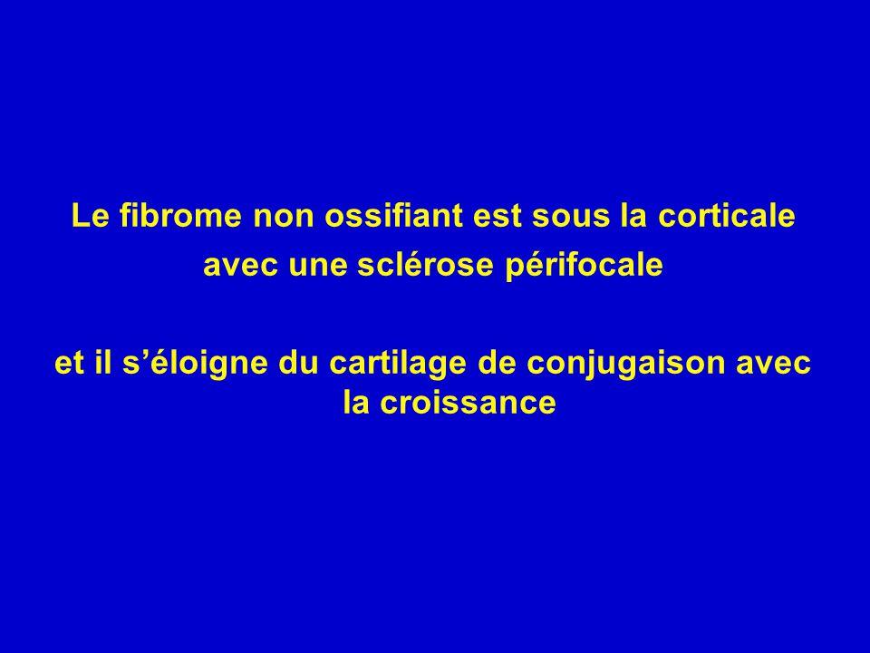Le fibrome non ossifiant est sous la corticale
