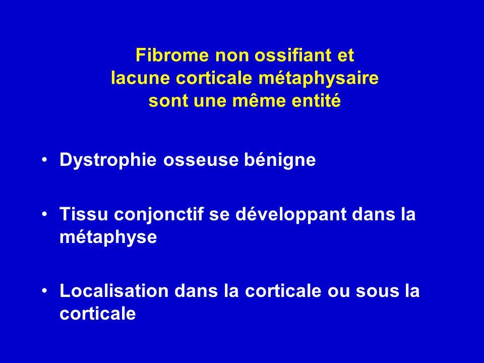 Fibrome non ossifiant et lacune corticale métaphysaire sont une même entité