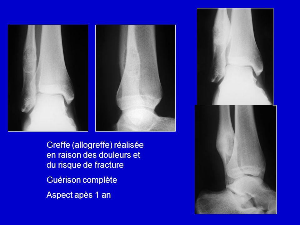 Greffe (allogreffe) réalisée en raison des douleurs et du risque de fracture