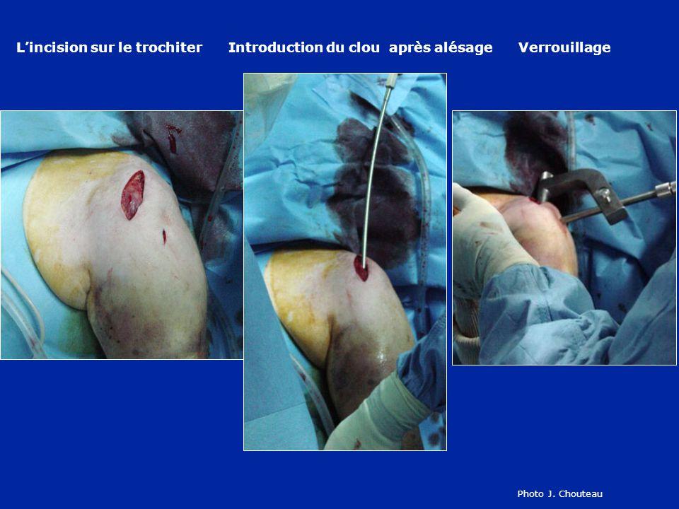L'incision sur le trochiter Introduction du clou après alésage Verrouillage