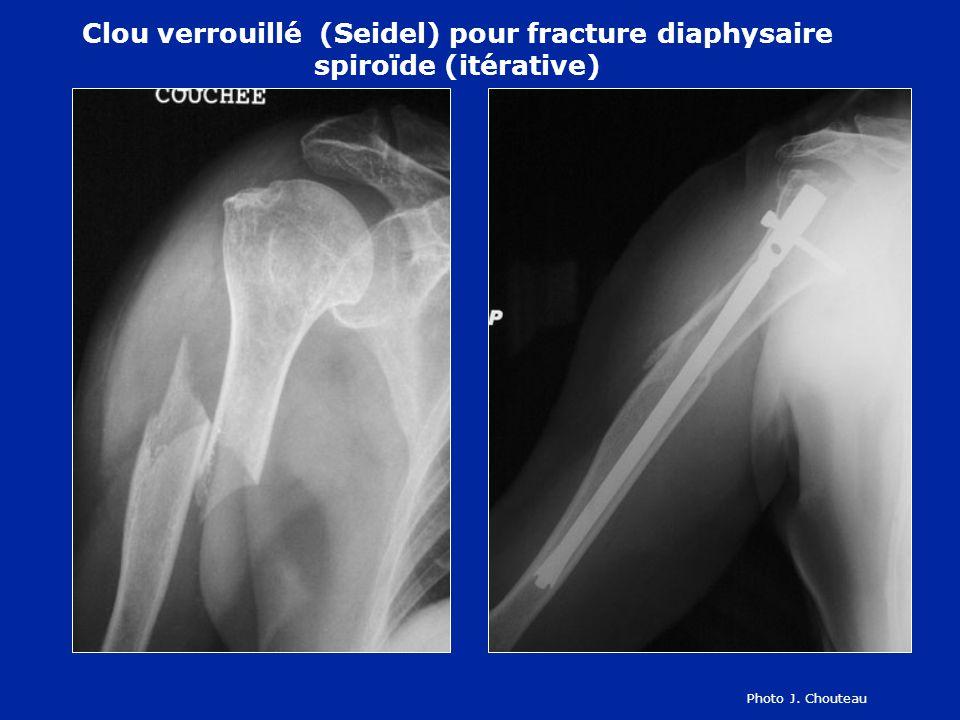 Clou verrouillé (Seidel) pour fracture diaphysaire spiroïde (itérative)