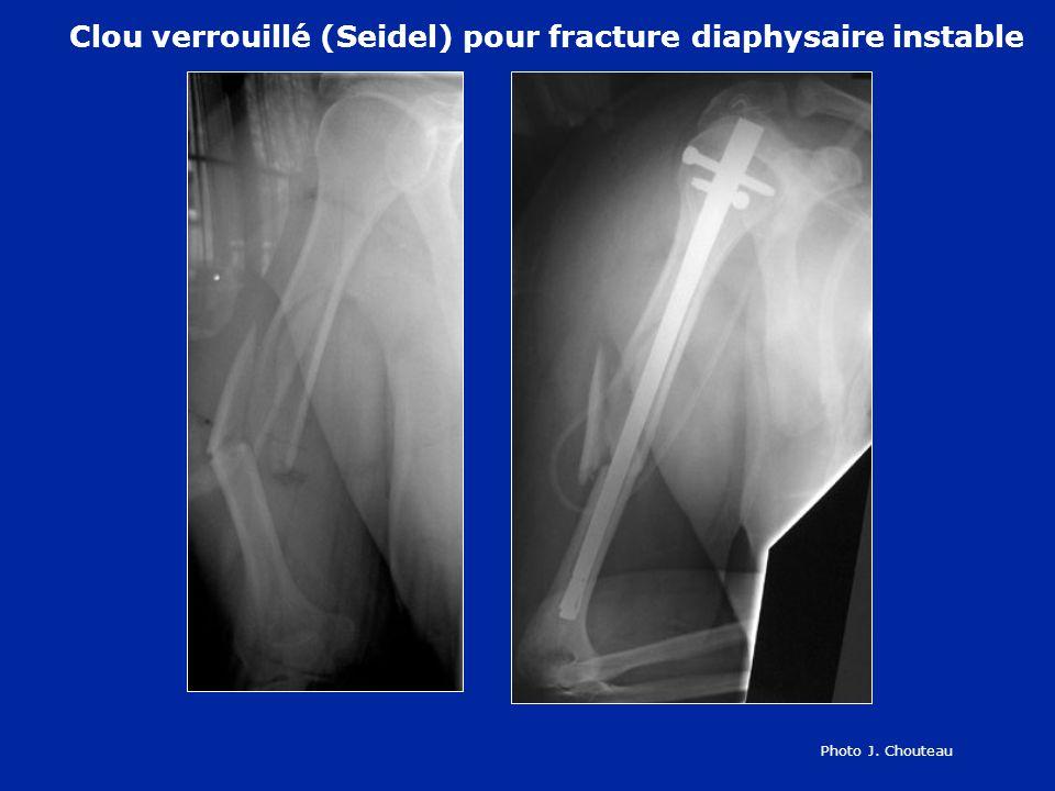 Clou verrouillé pour fracture diaphysaire instable