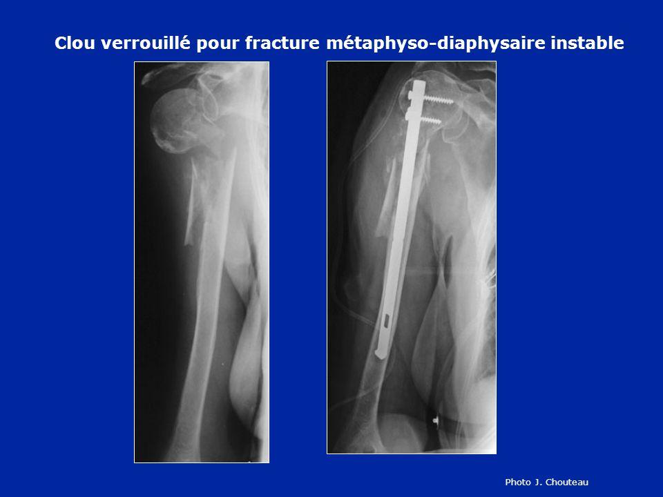 Clou verrouillé pour fracture métaphyso-diaphysaire instable
