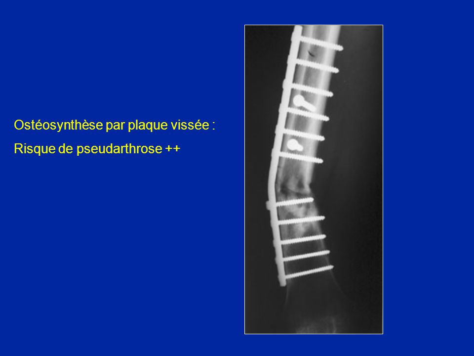 Ostéosynthèse par plaque vissée :