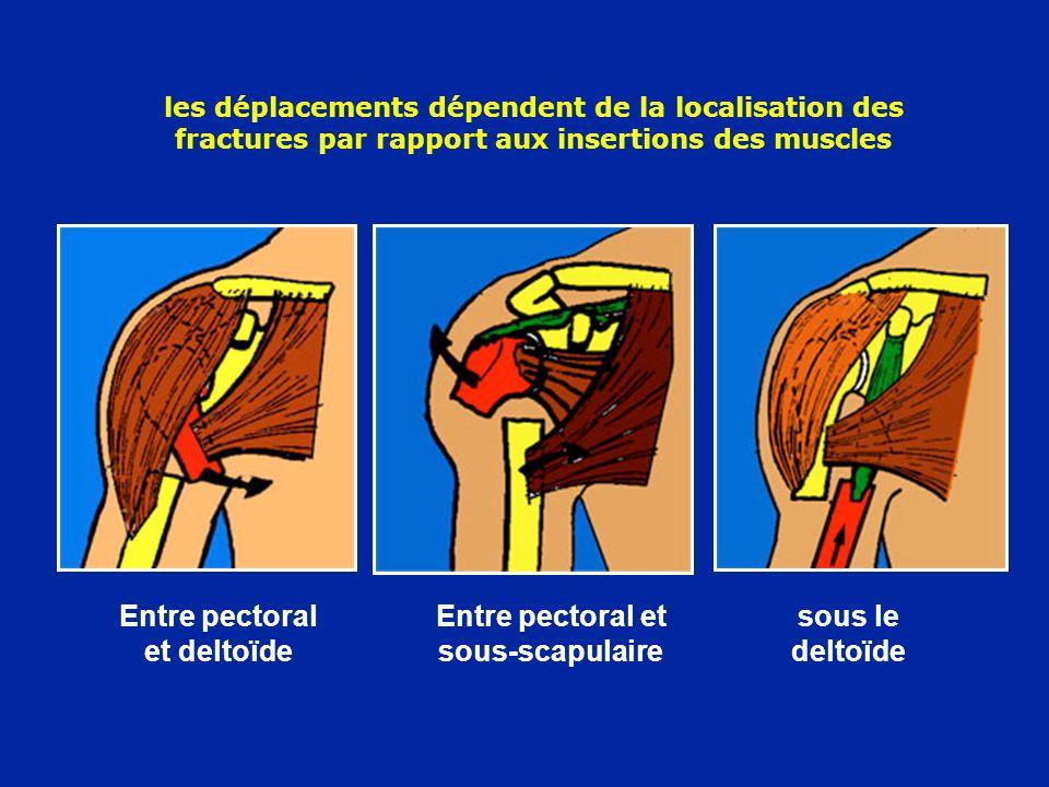 Entre pectoral et deltoïde Entre pectoral et sous-scapulaire