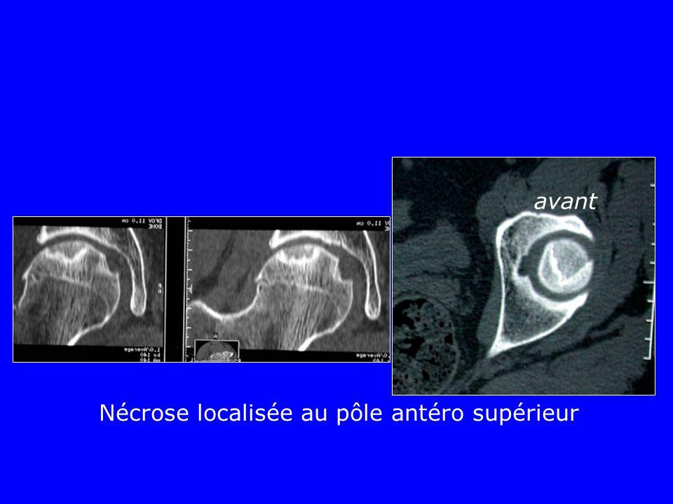 Nécrose localisée au pôle antéro supérieur