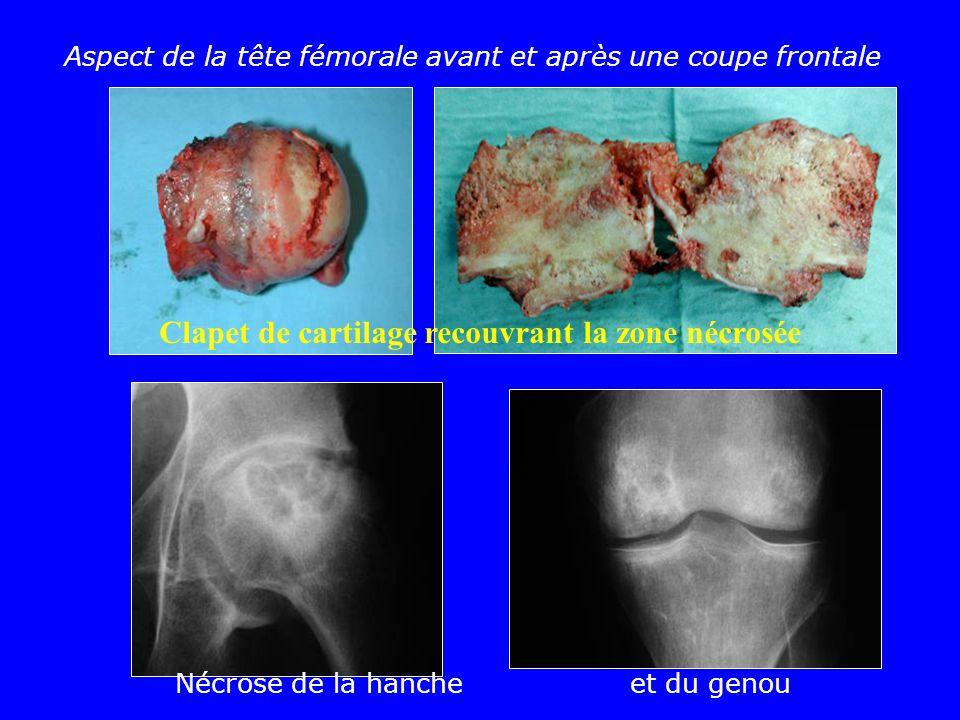 Clapet de cartilage recouvrant la zone nécrosée