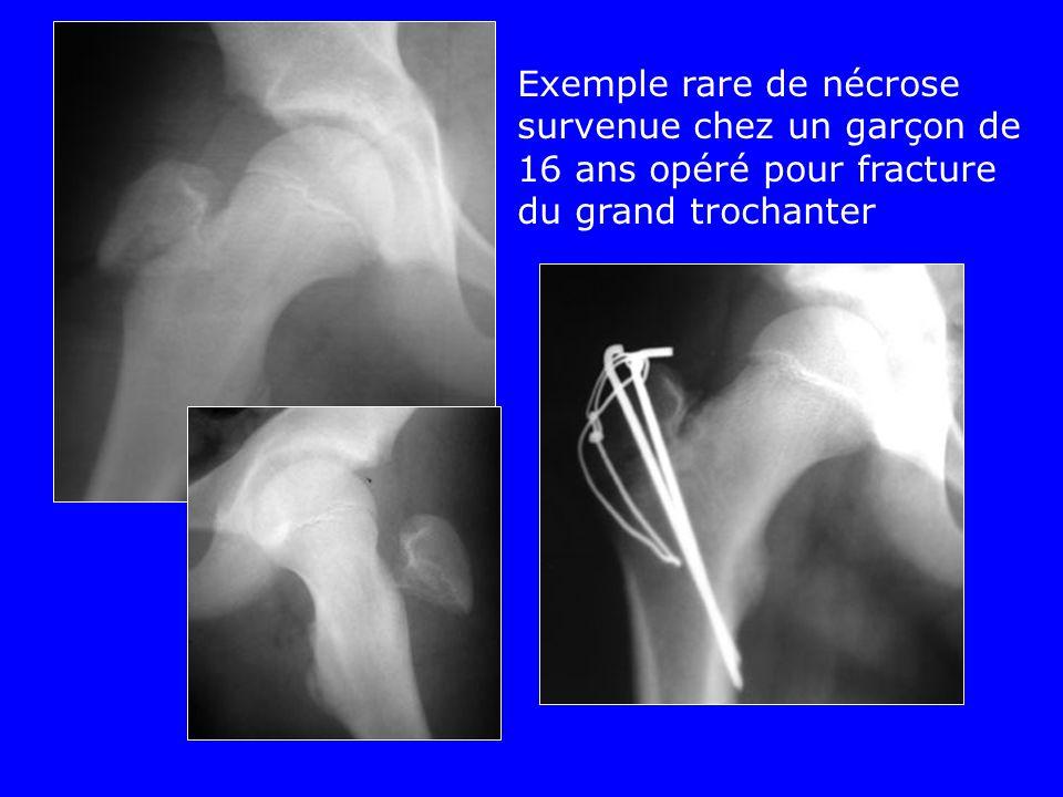 Exemple rare de nécrose survenue chez un garçon de 16 ans opéré pour fracture du grand trochanter