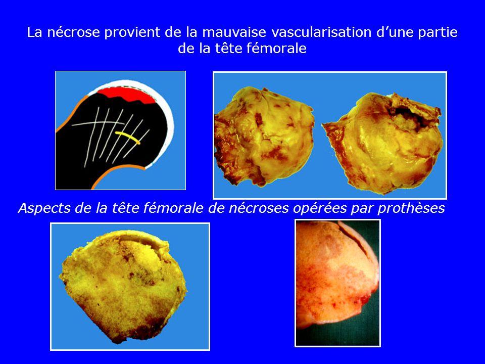 La nécrose provient de la mauvaise vascularisation d'une partie de la tête fémorale