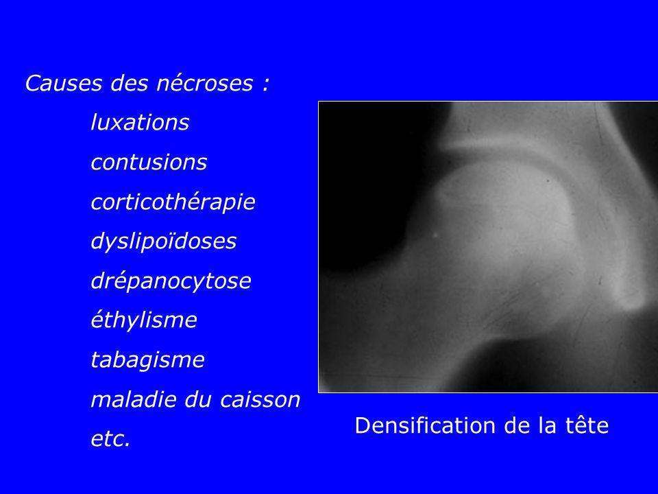 Densification de la tête