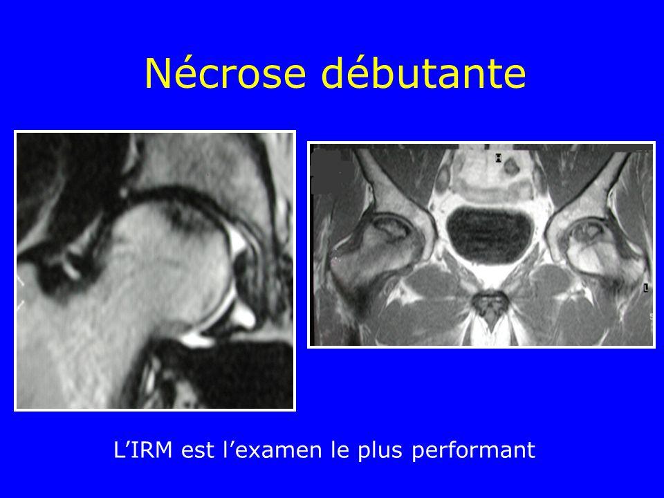 L'IRM est l'examen le plus performant