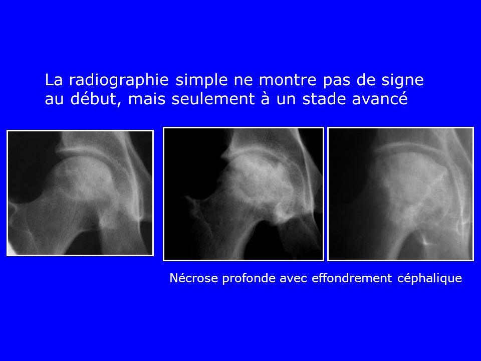 La radiographie simple ne montre pas de signe au début, mais seulement à un stade avancé