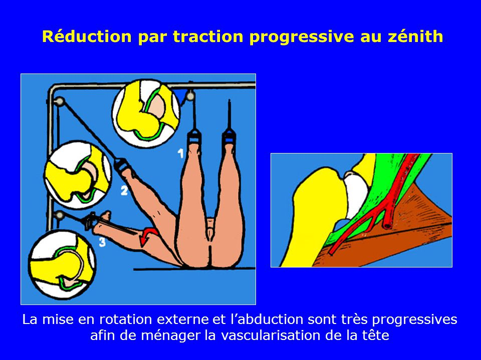 Réduction par traction progressive au zénith