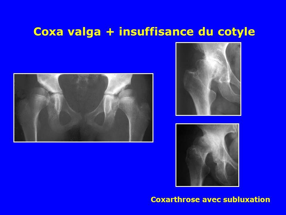 Coxa valga + insuffisance du cotyle