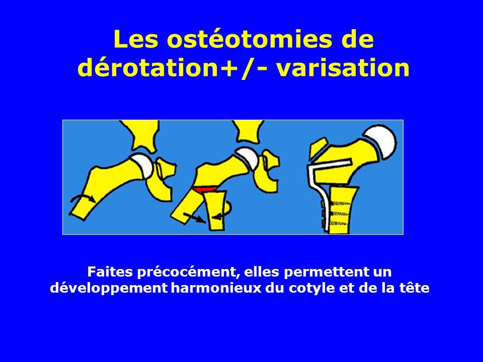 Les ostéotomies de dérotation+/- varisation