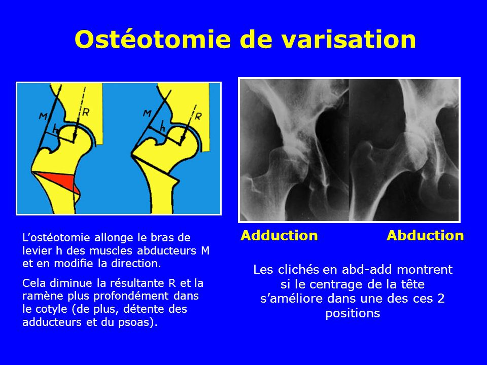 Ostéotomie de varisation