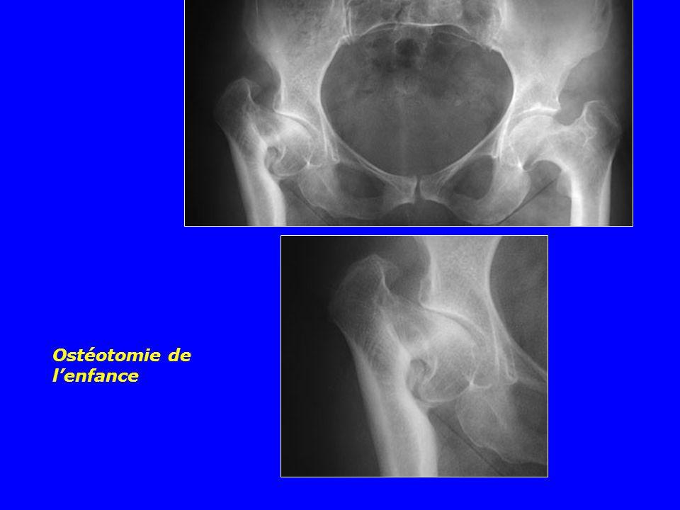 Ostéotomie de l'enfance