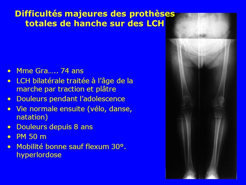 Difficultés majeures des prothèses totales de hanche sur des LCH