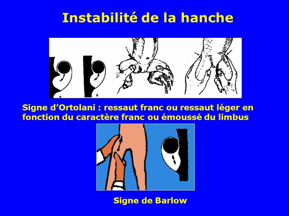 Instabilité de la hanche
