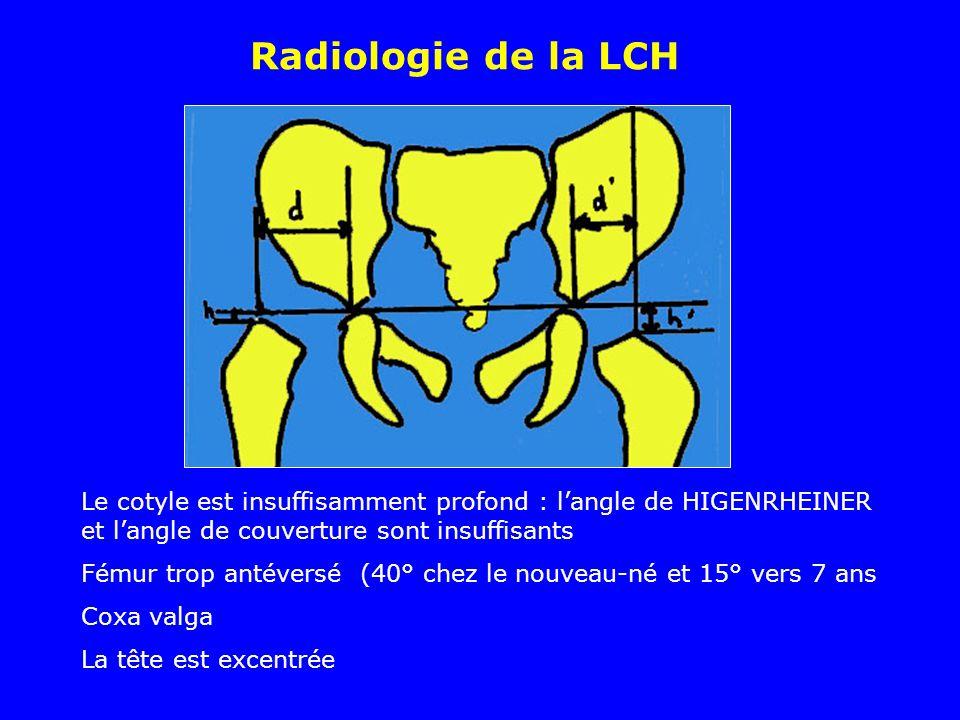 Radiologie de la LCH Le cotyle est insuffisamment profond : l'angle de HIGENRHEINER et l'angle de couverture sont insuffisants.