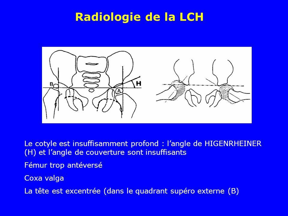 Radiologie de la LCH Le cotyle est insuffisamment profond : l'angle de HIGENRHEINER (H) et l'angle de couverture sont insuffisants.