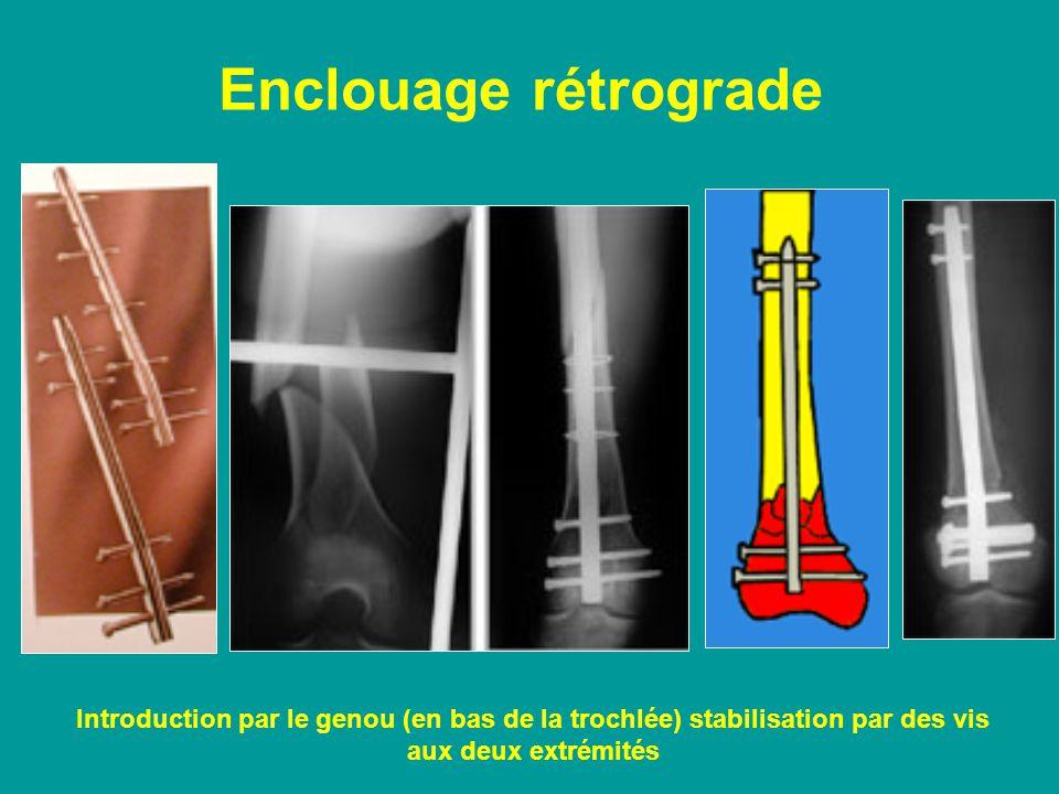 Enclouage rétrograde Introduction par le genou (en bas de la trochlée) stabilisation par des vis aux deux extrémités.