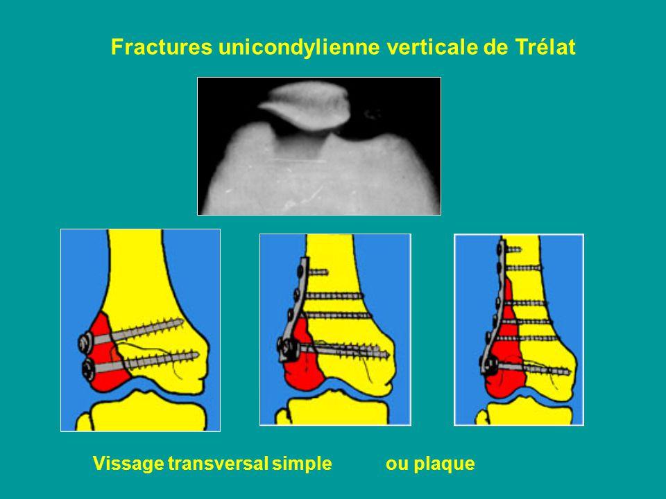 Fractures unicondylienne verticale de Trélat