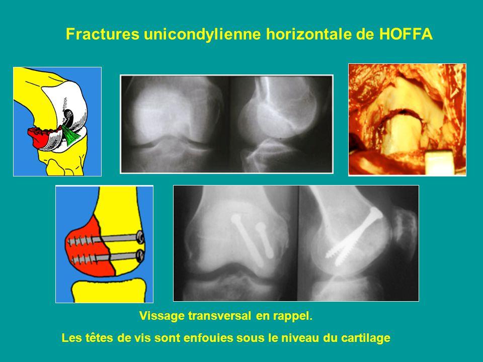 Fractures unicondylienne horizontale de HOFFA