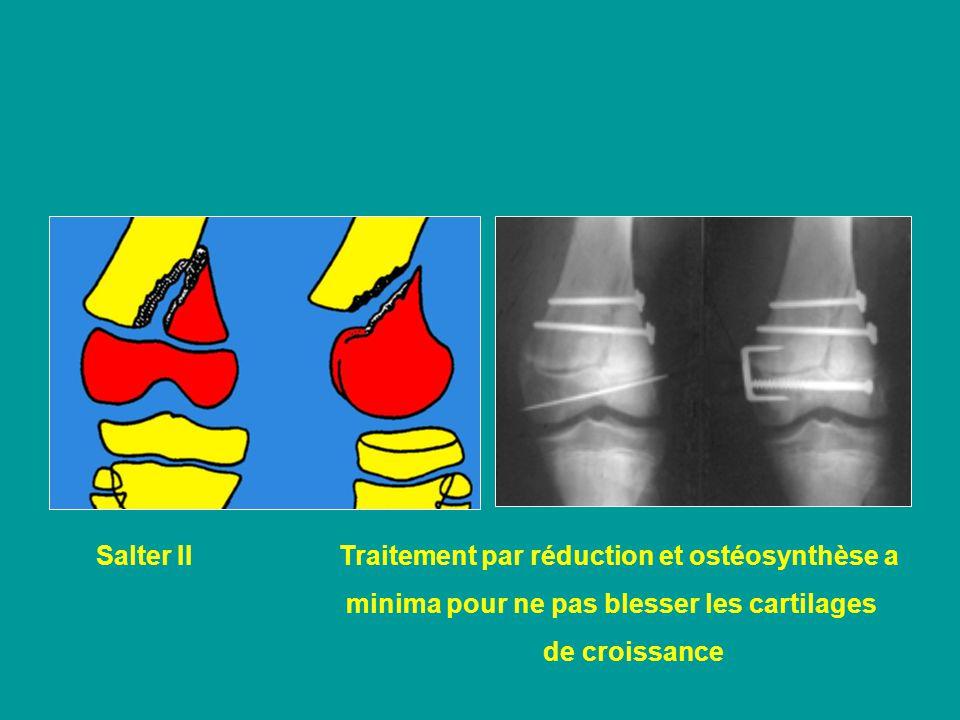 Salter II Traitement par réduction et ostéosynthèse a