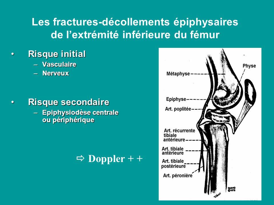 Les fractures-décollements épiphysaires de l'extrémité inférieure du fémur