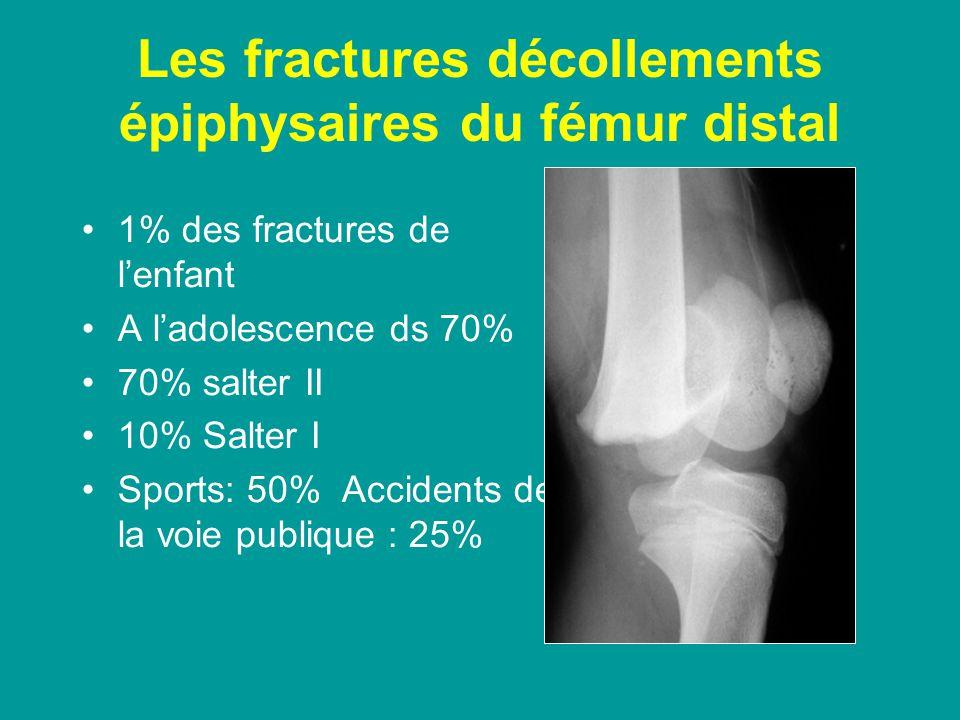 Les fractures décollements épiphysaires du fémur distal
