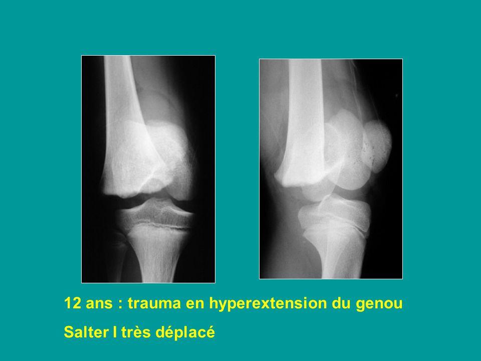 12 ans : trauma en hyperextension du genou