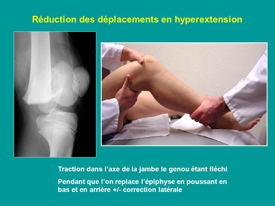 Réduction des déplacements en hyperextension
