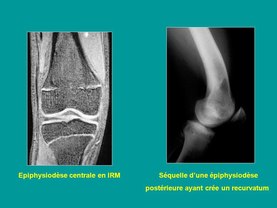 Epiphysiodèse centrale en IRM Séquelle d'une épiphysiodèse
