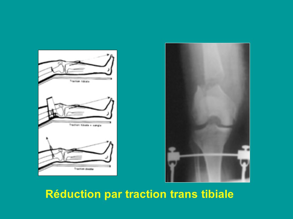 Réduction par traction trans tibiale en flexion