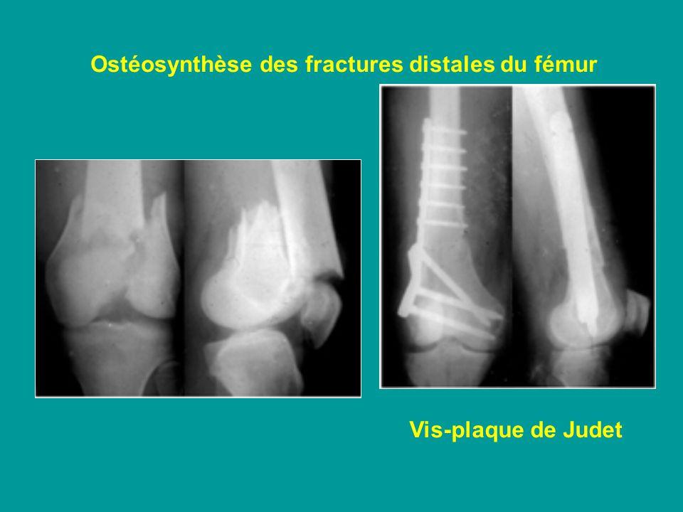 Ostéosynthèse des fractures distales du fémur