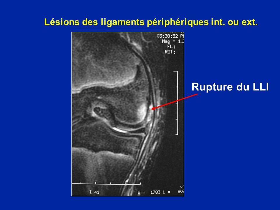 Lésions des ligaments périphériques int. ou ext.