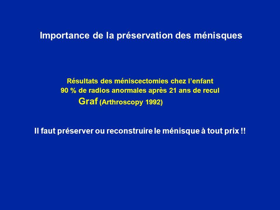 Importance de la préservation des ménisques