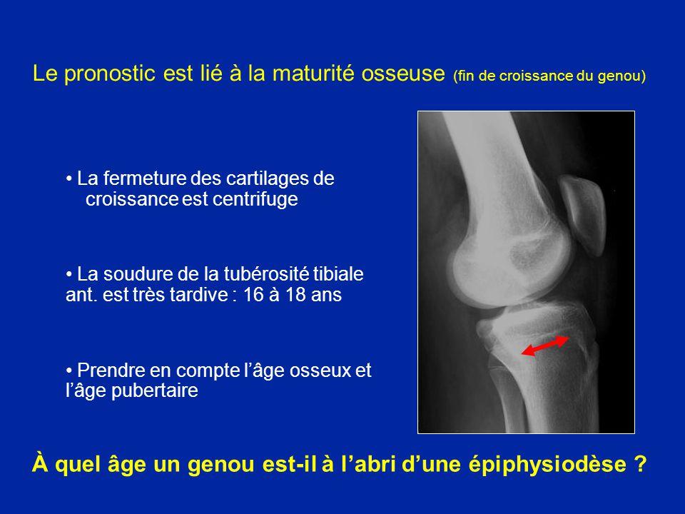 À quel âge un genou est-il à l'abri d'une épiphysiodèse