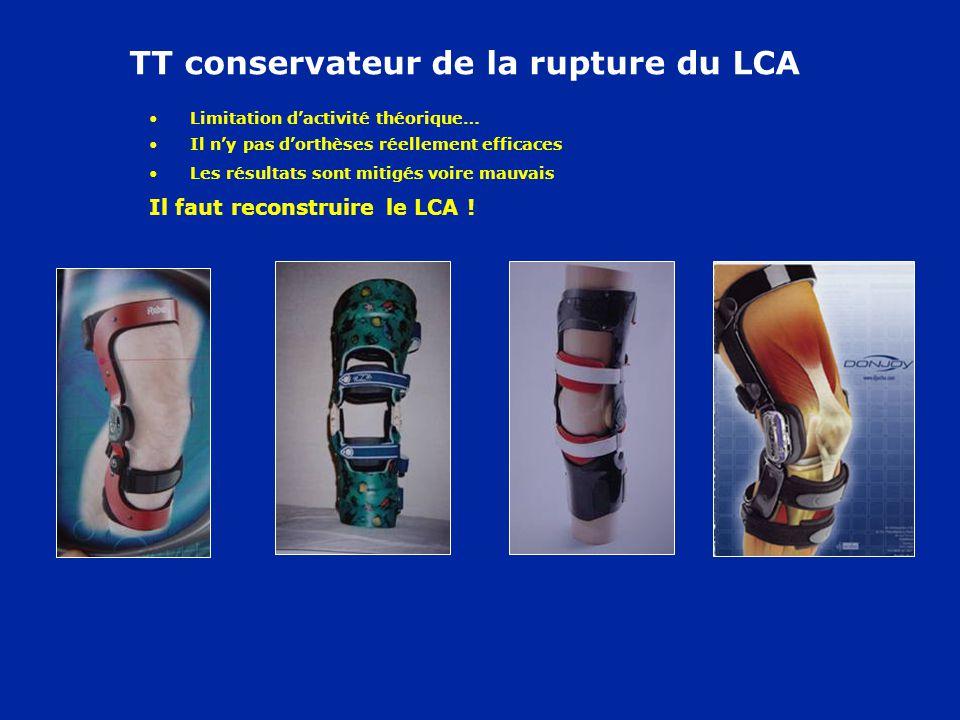 TT conservateur de la rupture du LCA