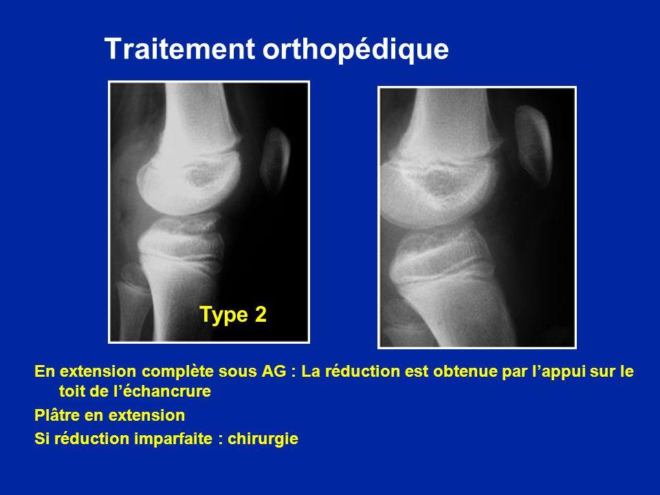 Traitement orthopédique