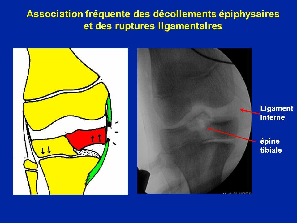 Association fréquente des décollements épiphysaires et des ruptures ligamentaires