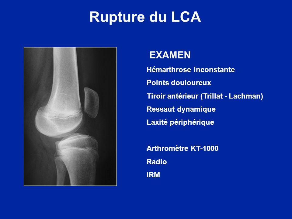 Rupture du LCA EXAMEN Hémarthrose inconstante Points douloureux